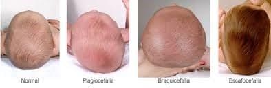 osteopatia6