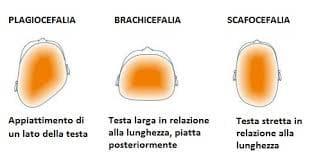 osteopatia7